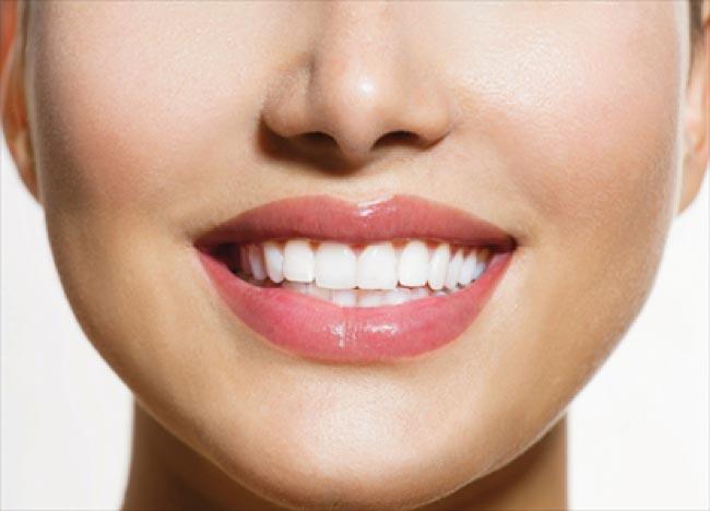 Enlighten Evolution Teeth Whitening