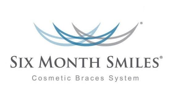 Six Month Smiles is a clear brace treatment that gives you a smile makeover without the need to wear unsightly metal braces